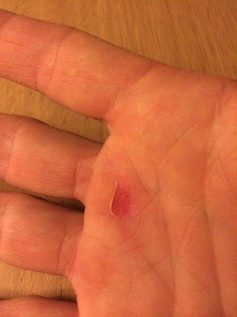 freeletics blasen hand klimmzuege-1